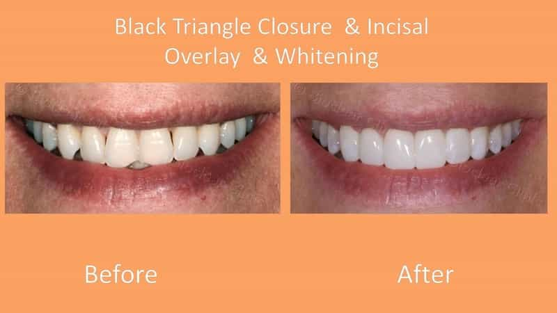 bioclear dentist lakewood ranch before after black triangles