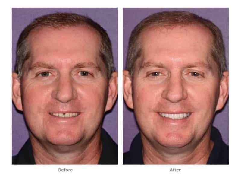 bioclear dentist lakewood ranch before after men