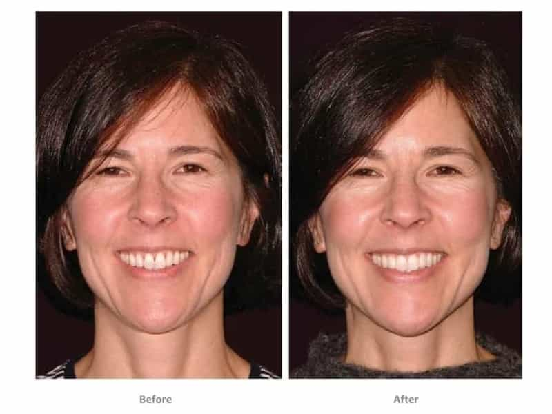 bioclear dentist lakewood ranch before after women