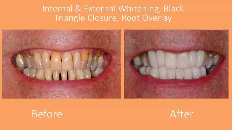 bioclear dentist lakewood ranch before after root overlay