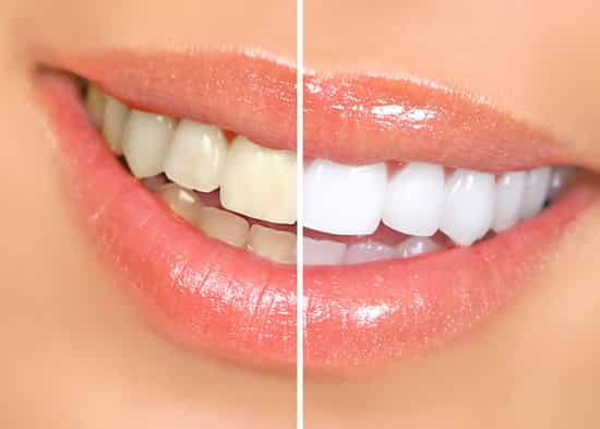 dentist lakewood ranch cosmetic dentistry