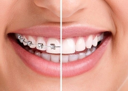 Invisalign braces in Lakewood Ranch - comparison of invisalign vs. braces metal